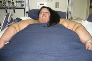 obese-woman